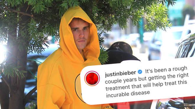 Justin Bieber announces his Lyme disease diagnosis on Instagram