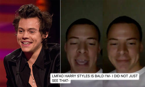 Bald Harry Styles Look Alike Has Fans Convinced One Direction Star Has Shaved His Hair Capital