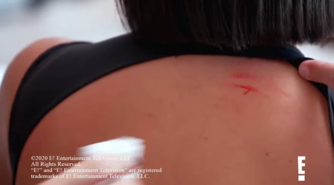 Kim Kardashian's back left scratched and bleeding