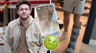 Niall Horan shows his injured foot on Instagram