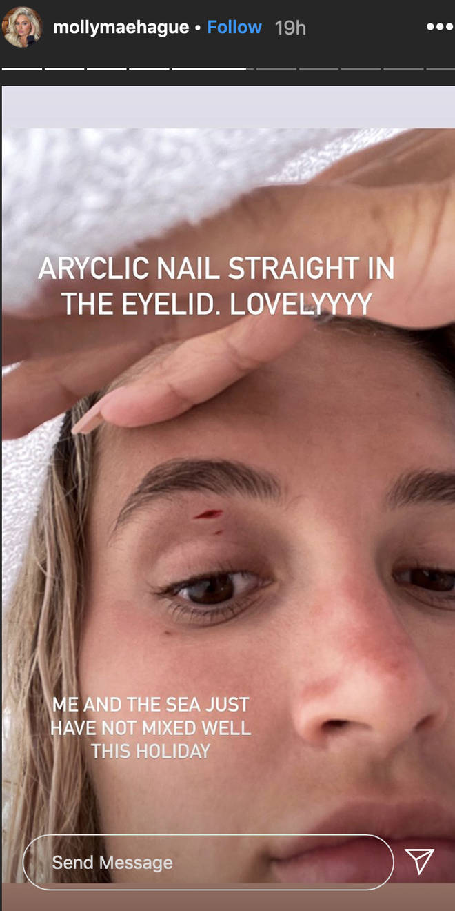Molly-Mae showed fans a close-up snap of the cut above her eye