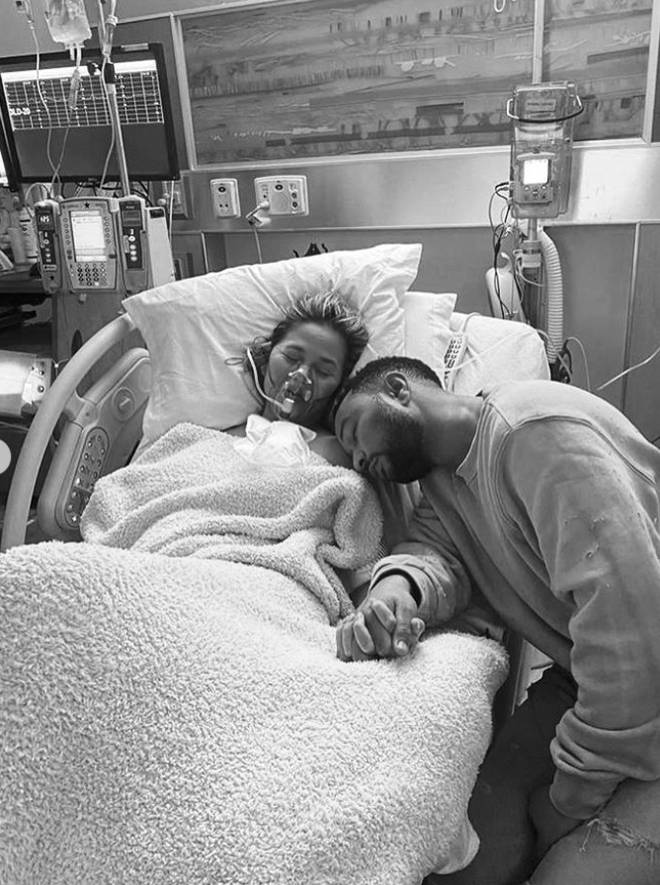 Chrissy Tiegen and John Legend lost their baby boy during complications