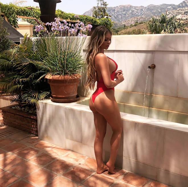 Chloe Sims reveals bum surgery results