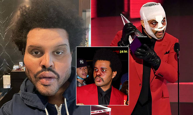 The Weeknd's bandages have left fans confused, with some speculating about whether or not he had plastic surgery.