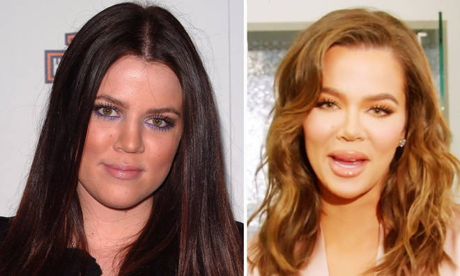 Khloé Kardashian sparks surgery rumours in recent snaps