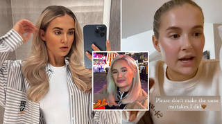 Molly-Mae Hague has dissolved her filler and removed the composite bonding on her teeth