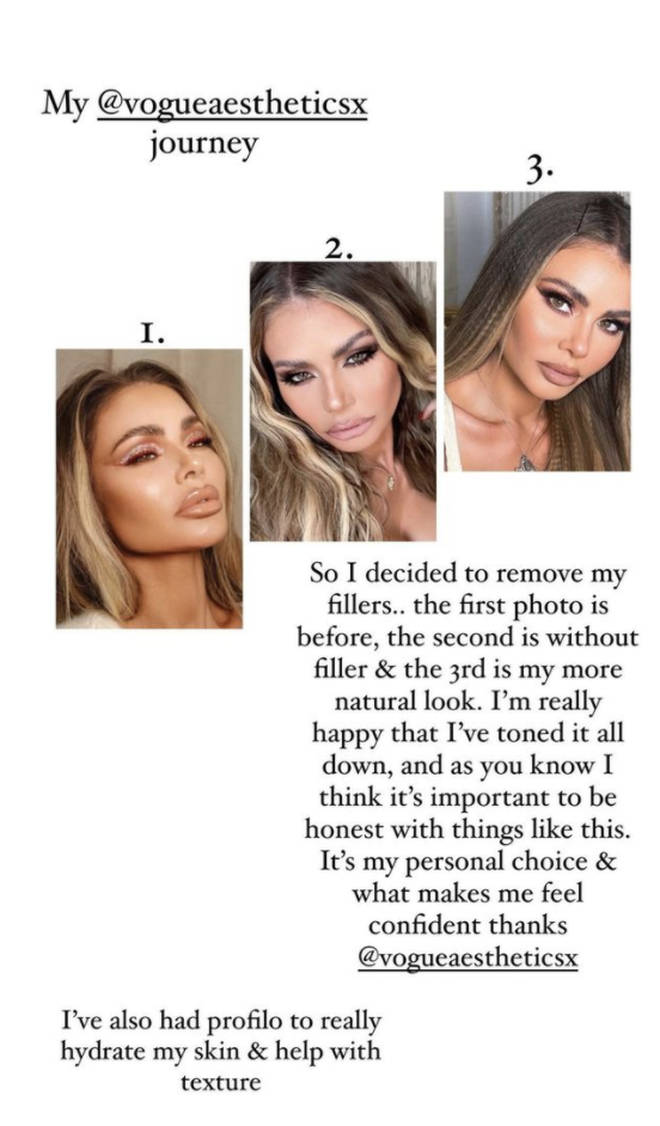 Chloe Sims details reversal procedures for a more natural look