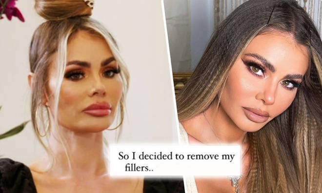 TOWIE star Chloe Sims removes fillers after years