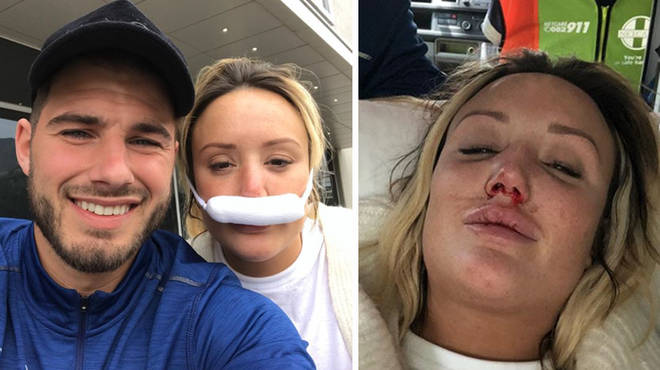 Charlotte Crosby broke her nose in three places during filming.