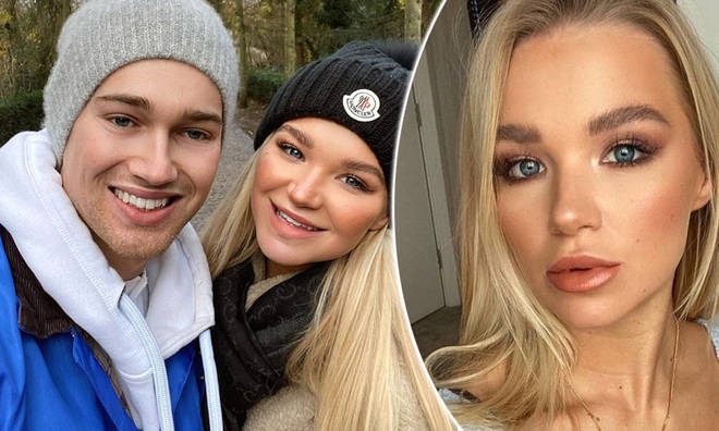 Abbie Quinnen shared a snap of her face on Instagram after keeping a low profile for three months.
