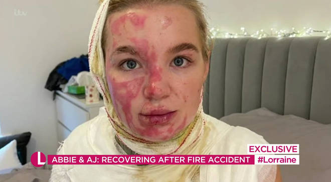 Abbie Quinnen suffered major burns following the fire accident.