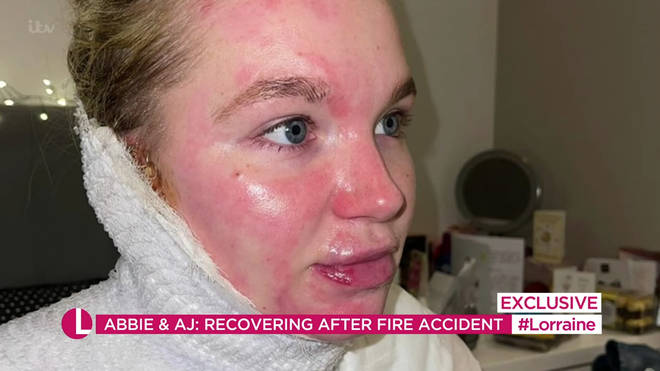 Abbie Quinnen underwent three skin grafts following the fire accident.