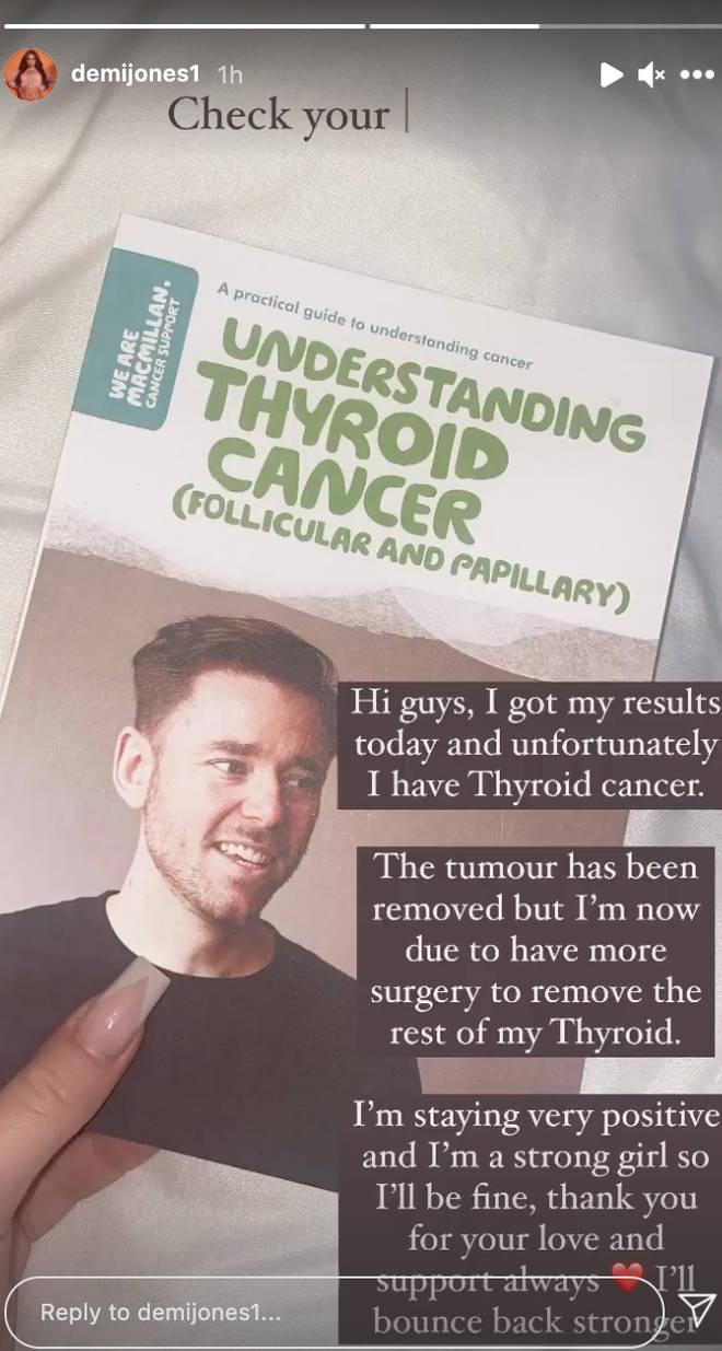 Demi Jones announced her thyroid cancer diagnosis on social media
