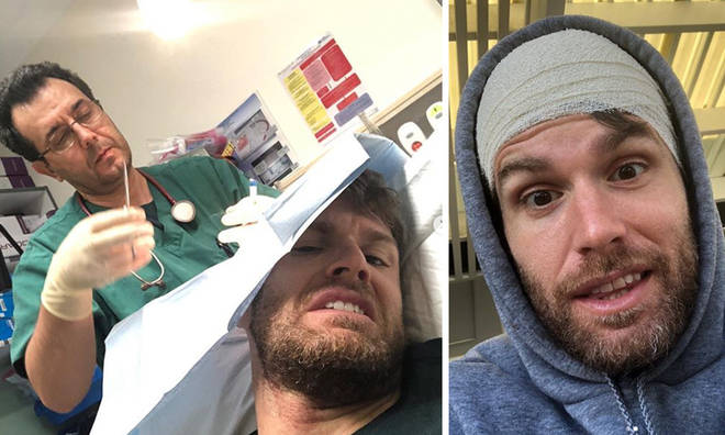 Joel Dommett had to get stitches for his head injury.