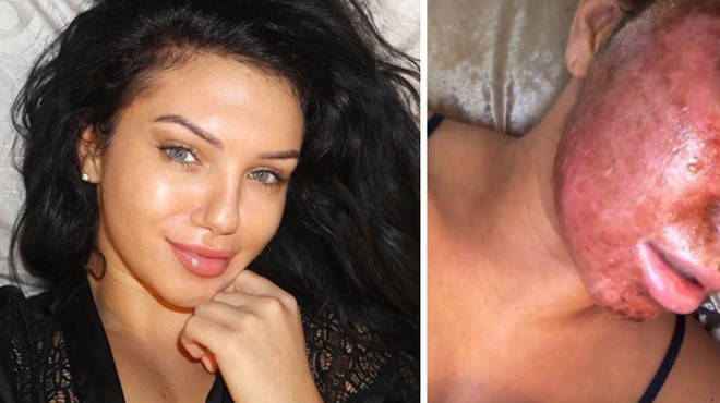 Alexandra Cane showed off her intense chemical peel.