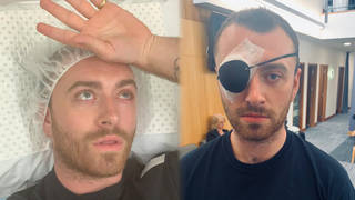Sam Smith had an operation to remove a stye from his left eye