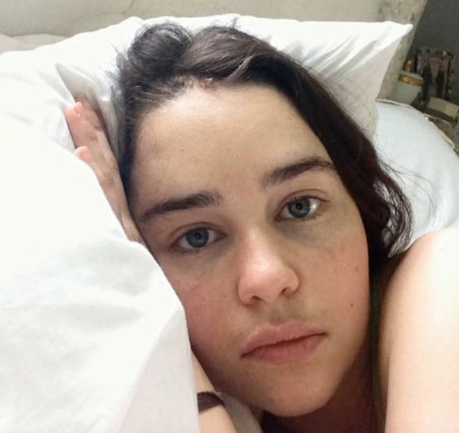 Emilia Clarke feared she'd lost the ability to act after two brain aneurysms
