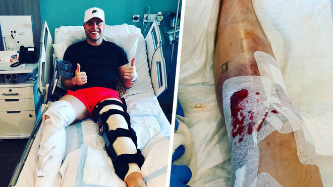Olly Murs shared photos of him knee surgery