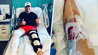 Olly Murs shared photos of him knee surgery