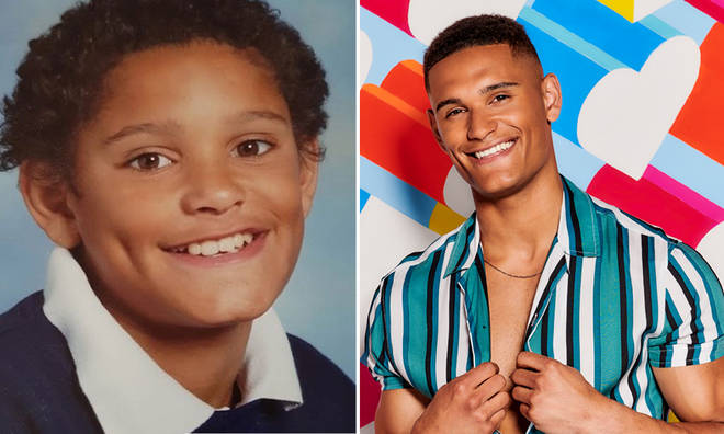Model Danny Williams had dimples from a young age