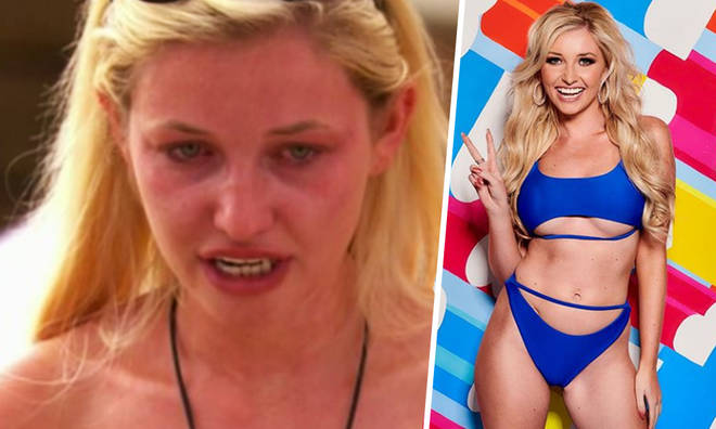 Amy Hart has revealed she was forced to eat during Love Island heartbreak