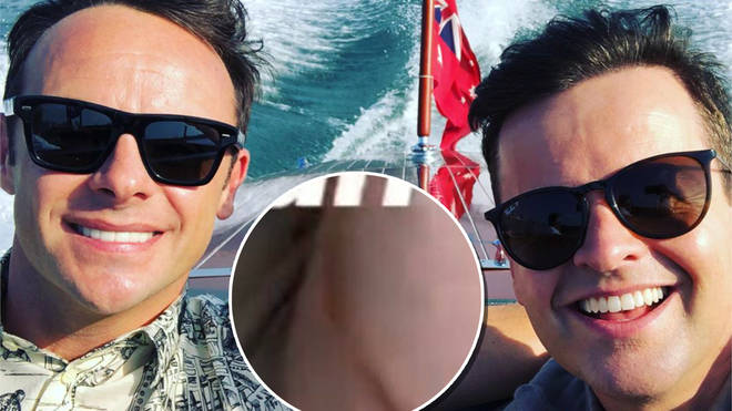 Dec was seen with a burn on the opening episode of I'm A Celebrity...