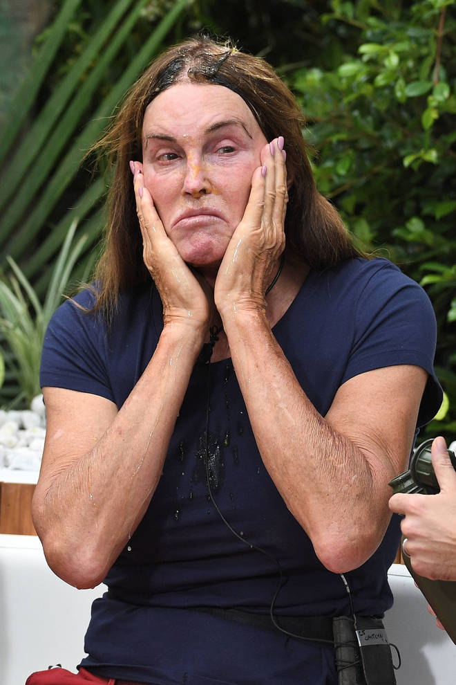 Caitlyn Jenner has a matching manicure and pedicure